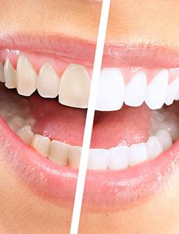 3 д отбеливание зубов